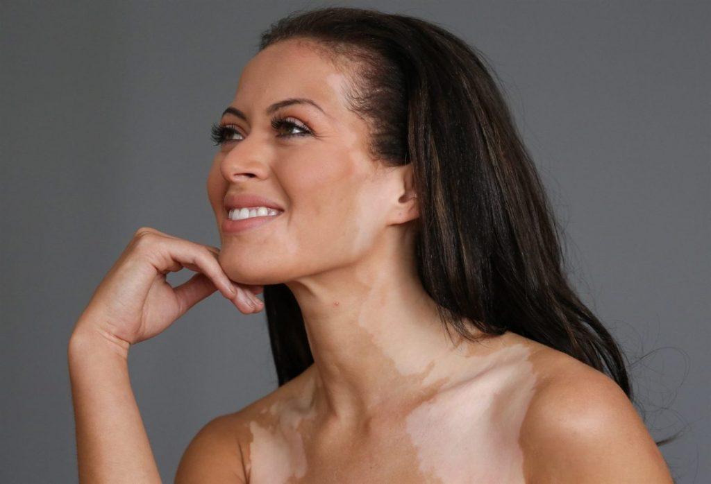 Vitiligo İçin 2 Kolay Bitkisel Tedavi